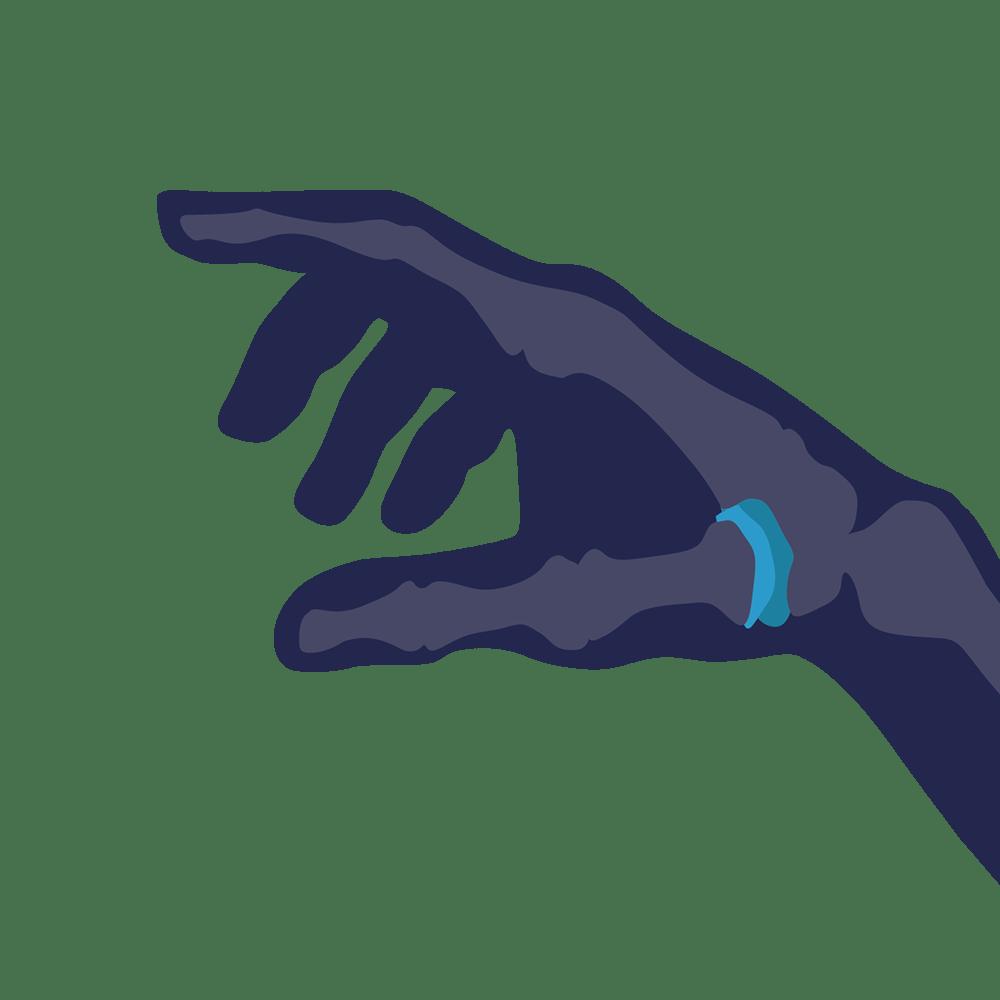 Arthritis of the thumb treatment